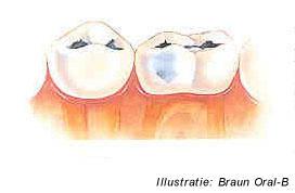 geen glazuur op tanden
